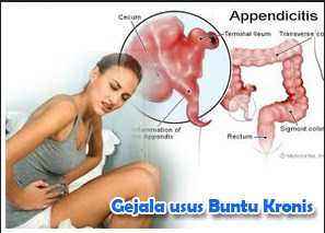 Symptoms of appendicitis